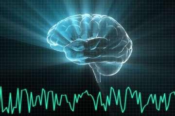 εγκέφαλος σουρεάλ