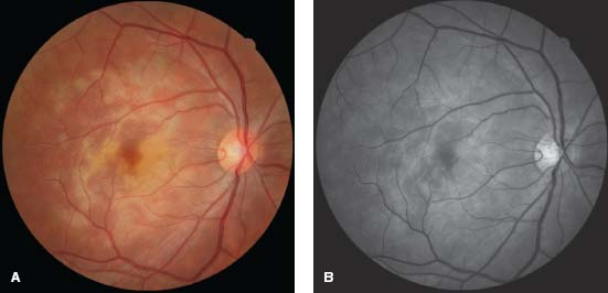 White Dot Syndromes Ento Key - Presumed Ocular Histoplasmosis