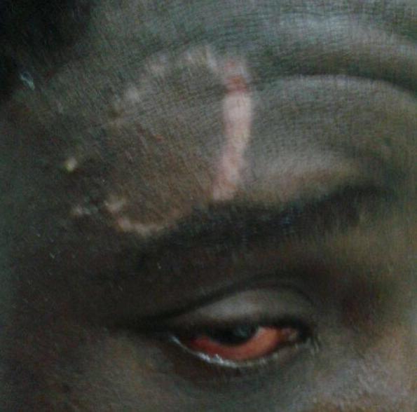Foto de un migrante afectado por el intento de entrada en Ceuta cedida por una ONG. / C.F