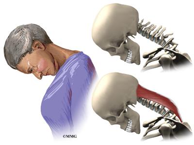 Dropped Head Syndrome Eorthopodcom