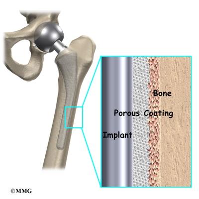 Hemiarthroplasty of the Hip eOrthopod