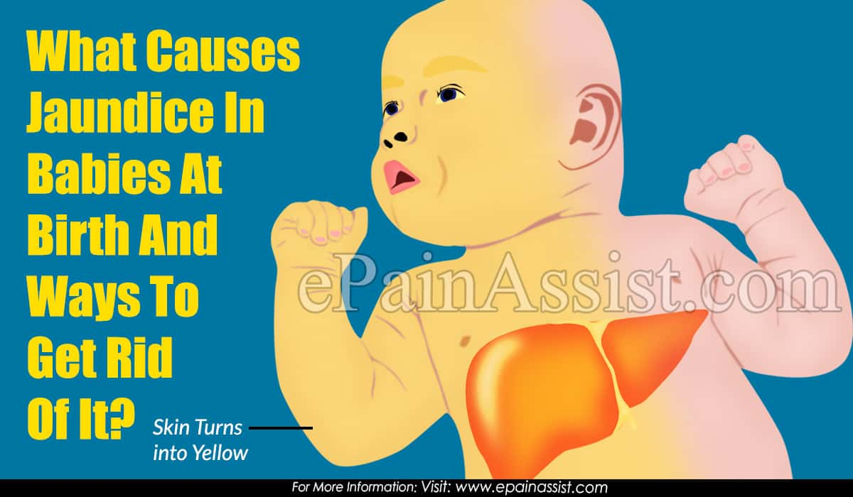 Newborn Babies Jaundice Treatment What Causes Jaundice In Babies At Birth And Ways To Get Rid
