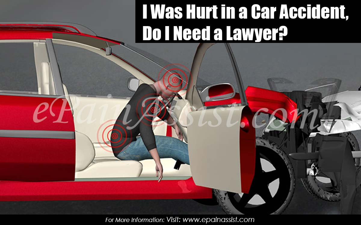 Injured In Accident I Was Hurt In A Car Accident Do I Need A Lawyer