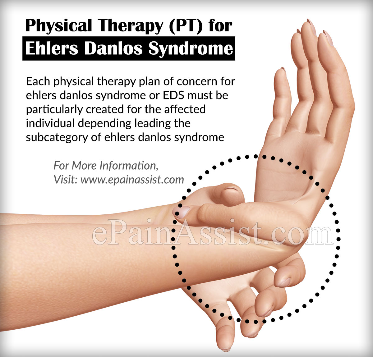 Ehlers Danlos Syndrome Ehlers Danlos Syndrome Or Eds Physical Therapy Home Remedies