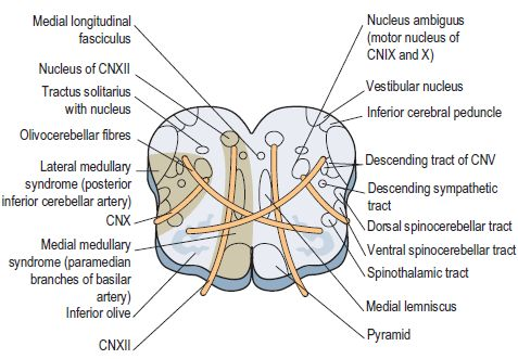 Anatomical basis of Wallenberg (Lateral Medullary) Syndrome