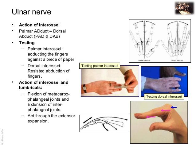 Ulnar nerve - Course and Innervation Epomedicine