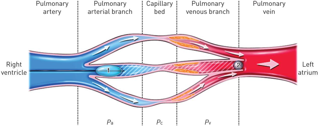Pulmonary veno-occlusive disease European Respiratory Society