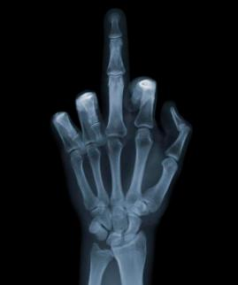 Nick Veasey X Ray art