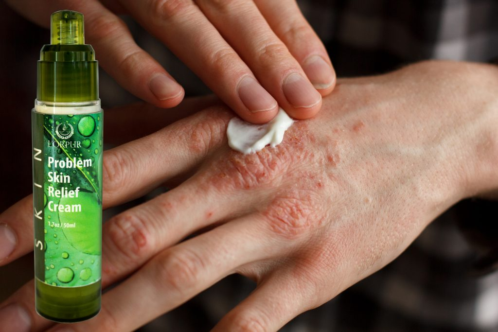 What Are The Best Essential Oils for Psoriasis And What Is The Best - essential oil for psoriasis