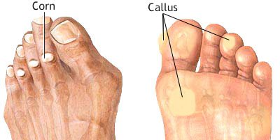 Corns and Callus