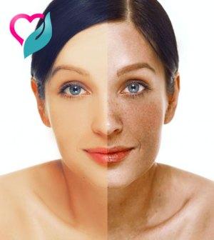 castor oil removes acne scars