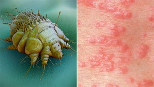 scabies-bug-irritation