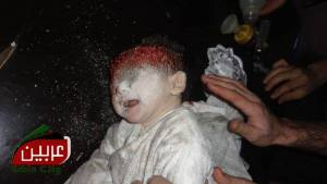 A victim of Russian bombing in Syria (Image: social media)