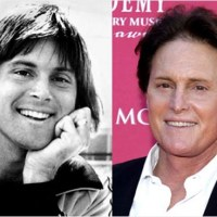 Bruce Jenner Plastic Surgery, Before and After Greatness