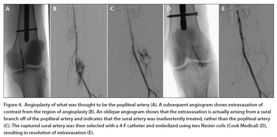 Endovascular Today - Managing Perforations of the Superficial