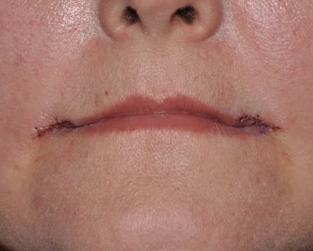 Non Surgical Marionette Line Removal