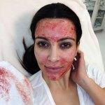 Blood On Her Face – Kim Kardashian Gets Vampire Facial