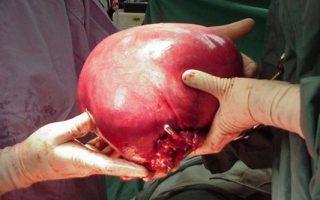fibroid 6 kilogram removed serag youssif