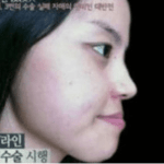 Oh god, Korean plastic surgery will never cease to amaze me