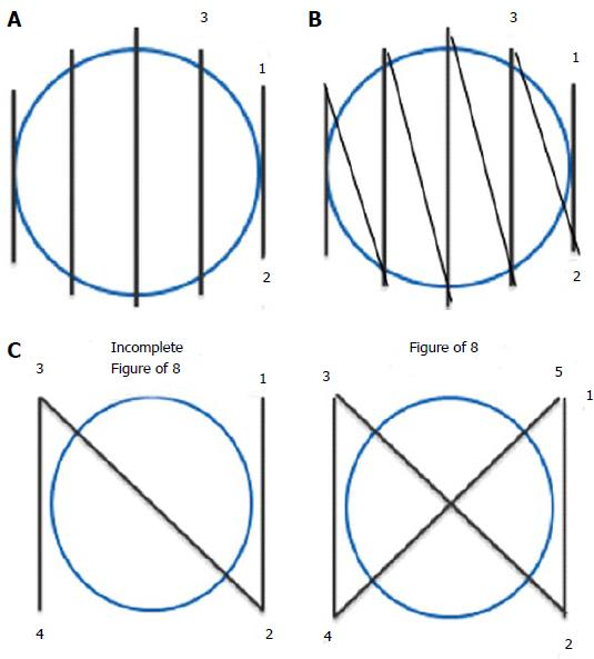 Current applications of endoscopic suturing