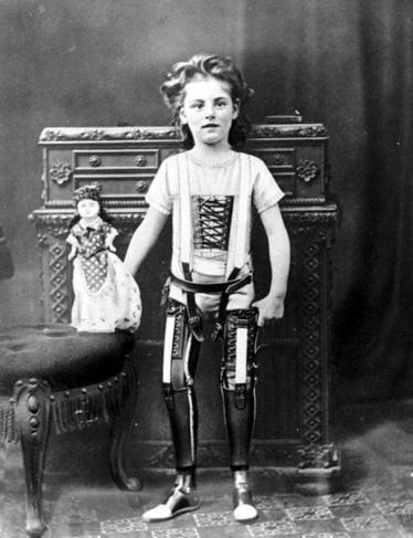Protese, 1890