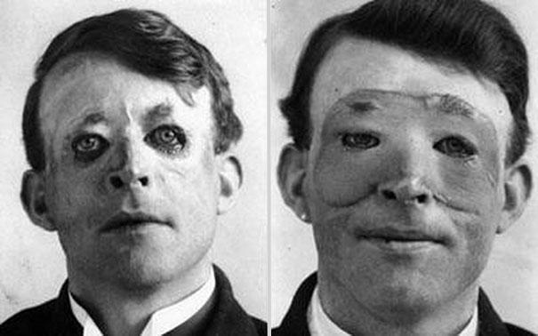 Walter Yeo, en av ferdens første som fikk plastisk kirurgi og hud transplantasjon, 1917