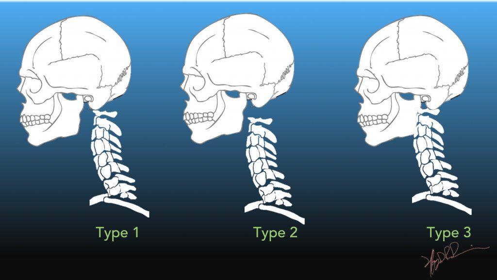 Atlanto-occipital Dissociation UW Emergency Radiology