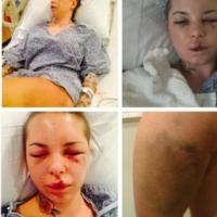 Christy Mack releases statement on War Machine assault