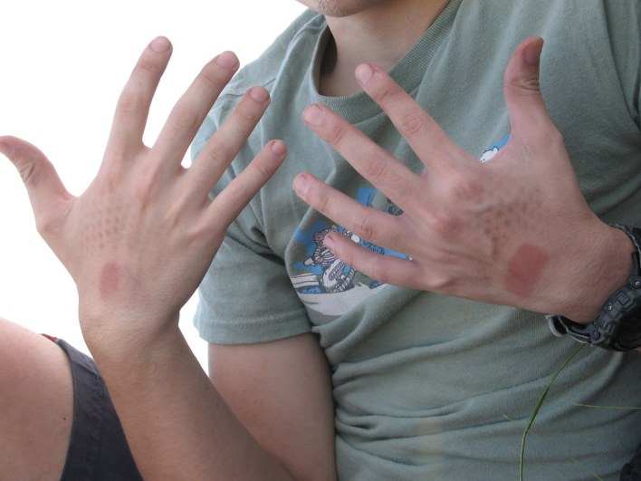 sunburn pattern by gedtech, on Flickr
