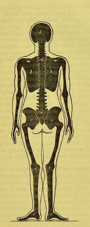 The World\u0027s Best Photos of kyphosis and spine - Flickr Hive Mind