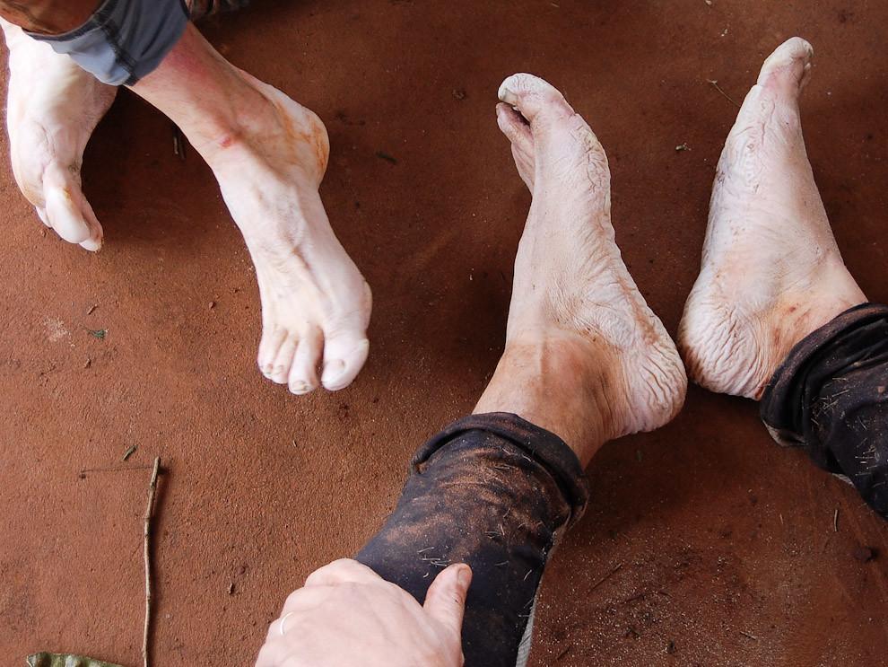 El famoso pié de atleta, producto de la permanencia en la humedad, esta degradación de la piel es una de las principales preocupaciones. (Elton Núñez - Cedrales, Paraguay)