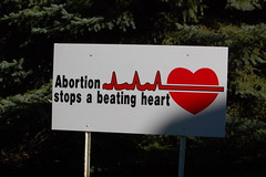 Abortion Stops a Beating Heart Sign