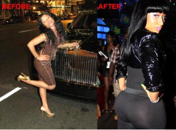 Nicki Minaj Plastic Surgery Before and After Photos