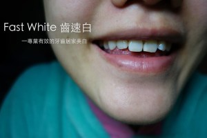 保養|試用美國FastWhite齒速白 牙托式快速牙齒美白系統