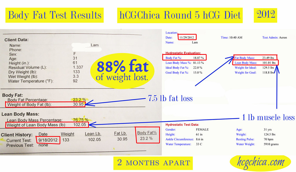 My HCG Diet Reviews From Size 16 to a Size 2