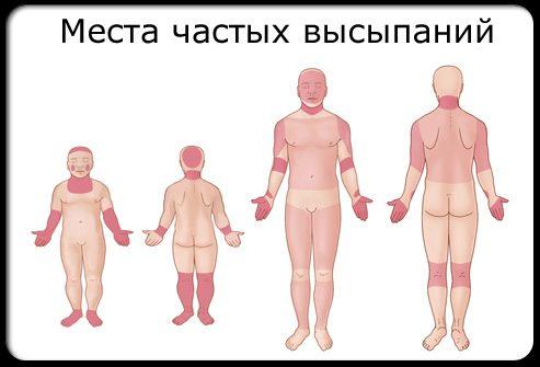 Лечение герпеса у детей: фото, виды, симптомы и признаки ...