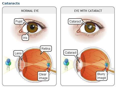 cataracts2