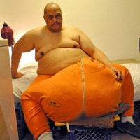 YIKES: Man with 132 lb. scrotum gets TLC show!
