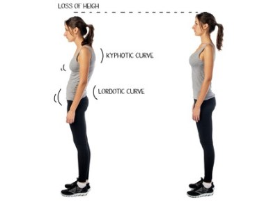 38755492 - woman with impaired posture position defect scoliosis and ideal bearing.