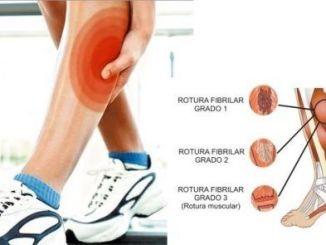 Contractura y Roturas Musculares