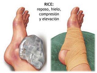 tecnica rices en fisioterapia