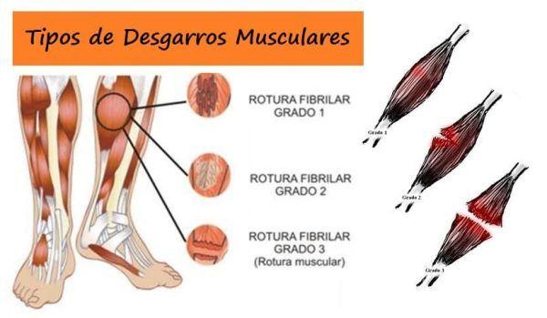 Tipos de Desgarros Musculares