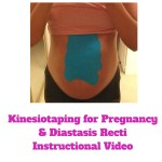 kinesiotaping for diastasis recti