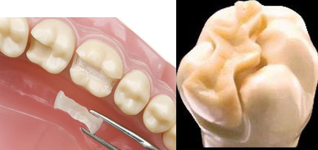 Dentist in Palmetto Bay Inlays and Onlays Floridian Dental Group
