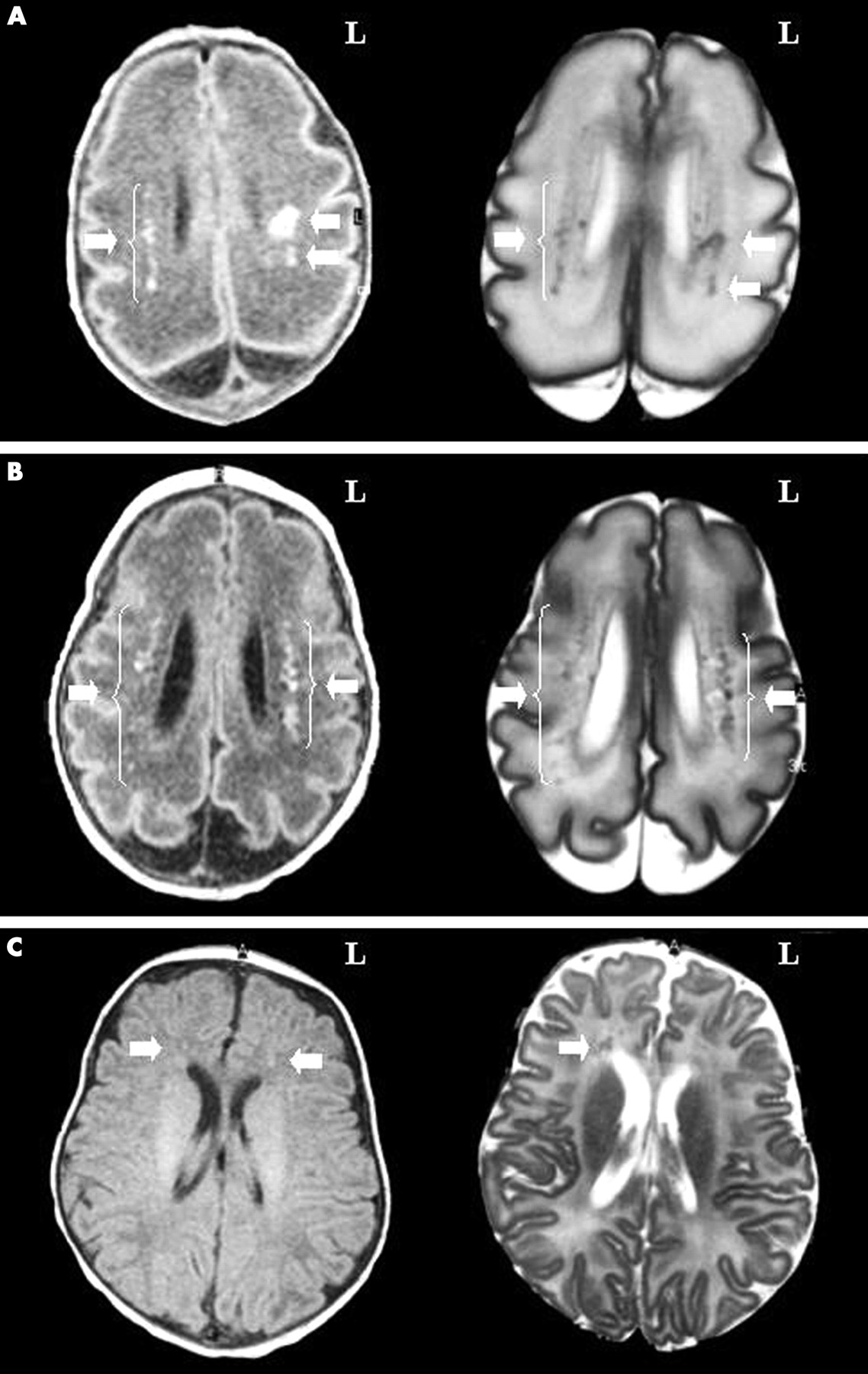 Brain Age Magnetic Resonance Imaging Of The Infant Brain: Anatomical