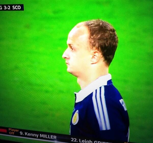 Griffiths's hairline...