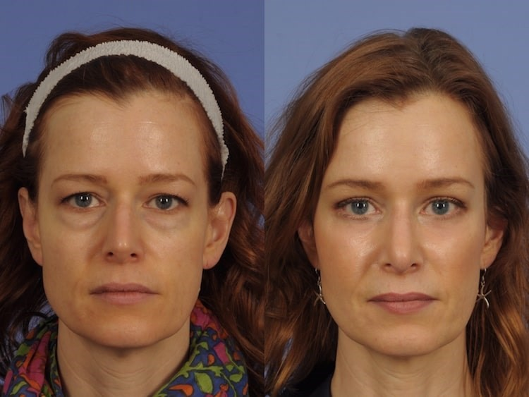 Ptosis Surgery Worth It? Side Effects, Cost, Before  After Results - ptosis surgery