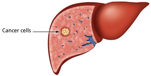 http://www.surgery.usc.edu/hepatobiliary/pg-howlivercancerdevelops.html