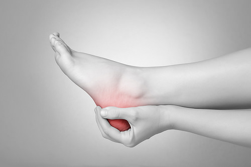 Plantar Fasciitis photo