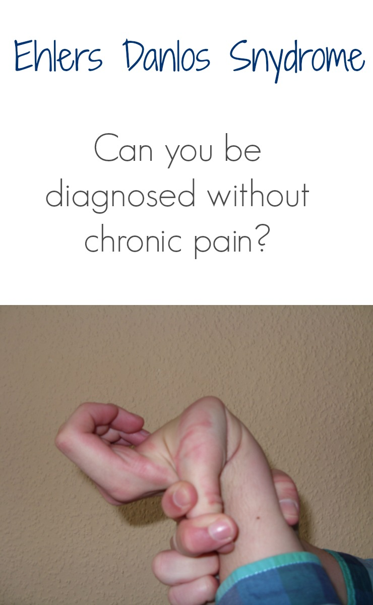 Ehlers Danlos Syndrome Ehlers Danlos Syndrome Without Pain